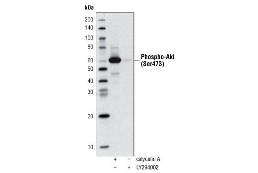 Western blot analysis of extracts of Jurkat cells, treated with either Calyculin A #9902 or LY294002 #9901, using Phospho-Akt (Ser473) (D9E) XP ® Rabbit mAb (Biotinylated) #5012 and detected with Streptavidin-HRP #3999.