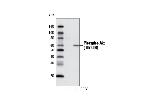Western blot analysis of extracts from NIH/3T3 cells, untreated or PDGF-treated, using Phospho-Akt (Thr308) (C31E5E) Rabbit mAb (Biotinylated) and detected using Streptavidin-HRP #3999.