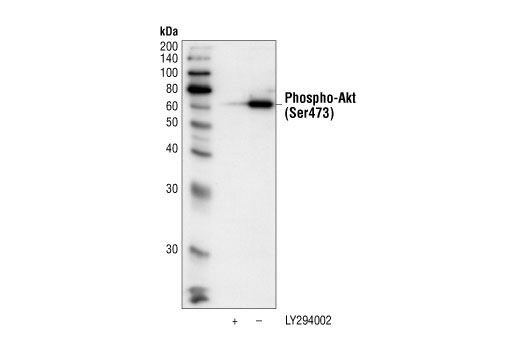 Akt phosphorylated at serine 473 was immunoprecipitated from untreated or LY294002 treated Jurkat cell extracts, using Phospho-Akt (Ser473) (587F11) Mouse mAb (Biotinylated). This immunocomplex was then pulled down using streptavidin beads. Western blotting was performed with Phospho-Akt (Ser473) Antibody #9271.