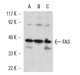 FAS (N-18): sc-714. Western blot analysis of FAS expression in A-431 (A), FAS treated Jurkat (B) and MDA-MB-231(C) whole cell lysates.