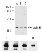 cyclin H (C-18): sc-609. Western blot analysis of cyclin H expression in cell extracts (UPPER PANEL) and purified polyhistidine tagged cyclin H fusion protein (LOWER PANEL). Cells tested include Jurkat (A), A-431 (B) and K-562 (C). Antibody concentrations tested for analysis of recombinant cyclin H protein include 0.1 µg/ml (D), 0.05 µg/ml (E), 0.01 µg/ml (F) and 0.001 µg/ml (G).