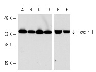 Western blot analysis of cyclin H expression in Jurkat (A), A-431 (B), K-562 (C), C32 (D,E) and NIH/3T3 (F) whole cell lysates. Antibodies tested include cyclin H (C-18): sc-609 (A-D) and cyclin H (FL-323): sc-855 (E,F).