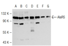 AlaRS (A-6): sc-165990. Western blot analysis of AlaRS expression in MCF7 (A), K-562 (B), Caki-1 (C), Hep G2 (D), HeLa (E), NIH/3T3 (F) and KNRK (G) whole cell lysates.