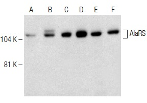AlaRS (C-16): sc-74698. Western blot analysis of AlaRS expression in non-transfected 293T: sc-117752 (A), human AlaRS transfected 293T: sc-159852 (B), MCF7 (C), HeLa (D), K-562 (E) and Hep G2 (F) whole cell lysates.