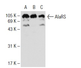 AlaRS (E-9): sc-165991. Western blot analysis of AlaRS expression in MCF7 (A), K-562 (B) and Caki-1 (C) whole cell lysates.