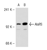 AlaRS (F-16): sc-74699. Western blot analysis of AlaRS expression in 293T (A) and HeLa (B) whole cell lysates.