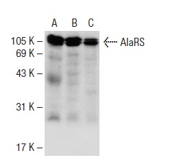 AlaRS (H-5): sc-165992. Western blot analysis of AlaRS expression in MCF7 (A), K-562 (B) and Caki-1 (C) whole cell lysates.