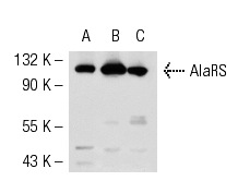 AlaRS (H-268): sc-98547. Western blot analysis of AlaRS expression in Caki-1 (A), K-562 (B) and Hep G2 (C) whole cell lysates.