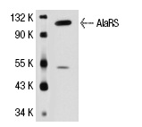 AlaRS (M6-P2E5): sc-81712. Western blot analysis of AlaRS expression in MCF7 whole cell lysate.