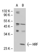 HRF (N-20): sc-20426. Western blot analysis of HRF expression in non-transfected: sc-110760 (A) and human HRF transfected: sc-110550 (B) 293 whole cell lysates.