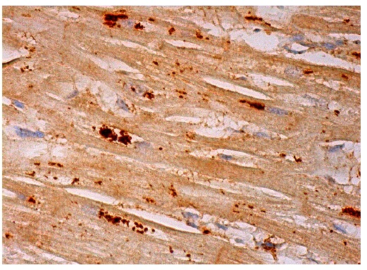 12-LO (L-20): sc-27357. Immunoperoxidase staining of formalin fixed, paraffin-embedded human heart muscle tissue showing cytoplasmic staining of myocytes.