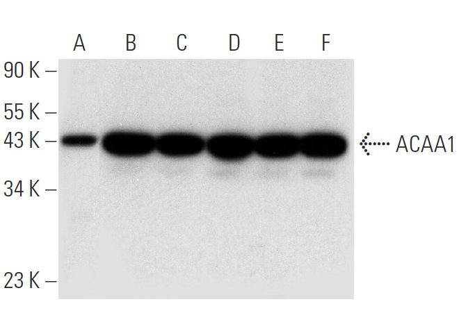 ACAA1 (C-8): sc-514051. Western blot analysis of ACAA1 expression in human liver tissue extract (A) and A549 (B), HeLa (C), Hep G2 (D), RT-4 (E) and U-251-MG (F) whole cell lysates.
