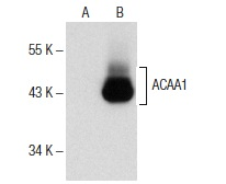 ACAA1 (N-14): sc-99258. Western blot analysis of ACAA1 expression in non-transfected: sc-117752 (A) and human ACAA1 transfected: sc-112996 (B) 293T whole cell lysates.