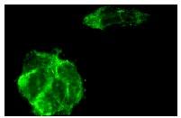 α-actinin (H-300): sc-15335. Immunofluorescence staining of methanol-fixed A-673 cells showing cytoplasmic staining.