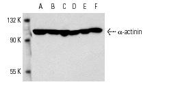α-actinin (C-20): sc-7454. Western blot analysis of α-actinin expression in C2C12 (A), Sol8 (B), NIH/3T3 (C), MCP-5 (D), 3T3-L1 (E) and c4 (F) whole cell lysates.