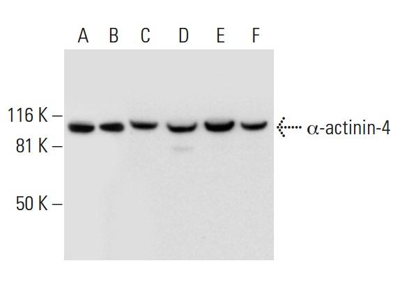 α-actinin-4 (A-8): sc-393495. Western blot analysis of α-actinin-4 expression in HeLa (A), A-673 (B), MCF7 (C), SJRH30 (D), K-562 (E) and A-431 (F) whole cell lysates.