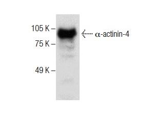 α-actinin-4 (B-11): sc-390180. Western blot analysis of α-actinin-4 expression in HeLa whole cell lysate.