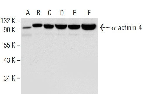 α-actinin-4 (D-3): sc-398088. Western blot analysis of α-actinin-4 expression in NIH/3T3 (A), A-673 (B), HeLa (C), MCF7 (D), SJRH30 (E) and K-562 (F) whole cell lysates.