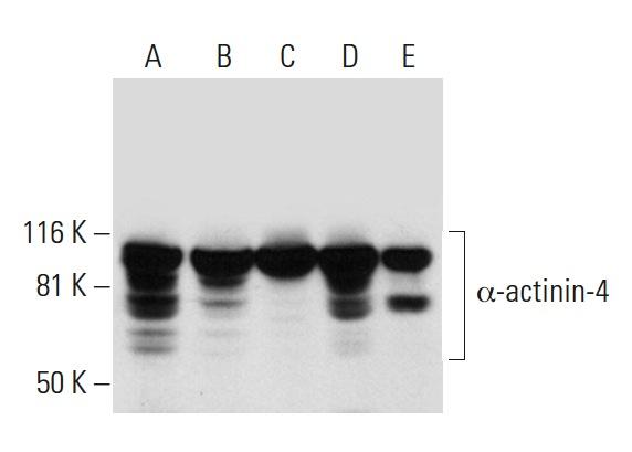 α-actinin-4 (G-4): sc-390205. Western blot analysis of α-actinin-4 expression in MCF7 (A), SJRH30 (B), K-562 (C), A-431 (D) and 3T3-L1 (E) whole cell lysates.
