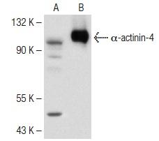 α-actinin-4 (H-51): sc-135346. Western blot analysis of α-actinin-4 expression in non-transfected: sc-117752 (A) and human α-actinin-4 transfected: sc-176210 (B) 293T whole cell lysates.