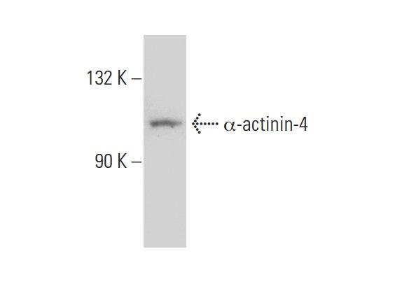 α-actinin-4 (N-17): sc-49333. Western blot analysis of α-actinin-4 expression in HeLa whole cell lysate.