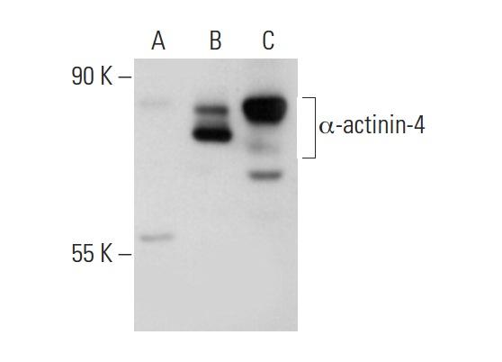 α-actinin-4 (LW-M23): sc-134236. Western blot analysis of α-actinin-4 expression in non-transfected 293T: sc-117752 (A), human α-actinin-4 transfected 293T: sc-176191 (B) and HeLa (C) whole cell lysates.