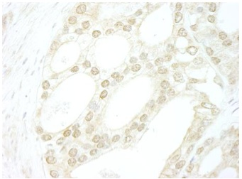 ab114055, at 1/250 dilution, staining B MyB in formalin-fixed, paraffin-embedded Human prostate carcinoma tissue by Immunohistochemistry with DAB staining.