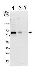 All lanes : Anti-ABI2 antibody (ab113991) at 0.4 µg/mlLane 1 : HeLa whole cell lysate at 50 µgLane 2 : HeLa whole cell lysate at 15 µgLane 3 : HeLa whole cell lysate at 5 µgdeveloped using the ECL technique