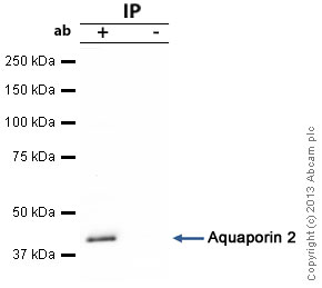 ACAA1 was immunoprecipitated using 0.5mg Mouse Liver tissue lysate, 5µg of Mouse monoclonal to ACAA1 and 50µl of protein G magnetic beads (+). No antibody was added to the control (-).The antibody was incubated under agitation with Protein G beads for 10min, Mouse Liver tissue lysate lysate diluted in RIPA buffer was added to each sample and incubated for a further 10min under agitation.Proteins were eluted by addition of 40µl SDS loading buffer and incubated for 10min at 70°C; 10µl of each sample was separated on a SDS PAGE gel, transferred to a nitrocellulose membrane, blocked with 5% BSA and probed with ab110289.Secondary: Goat polyclonal to mouse IgG light chain specific (HRP) at 1/20,000 dilution.Band: 44kDa; ACAA1
