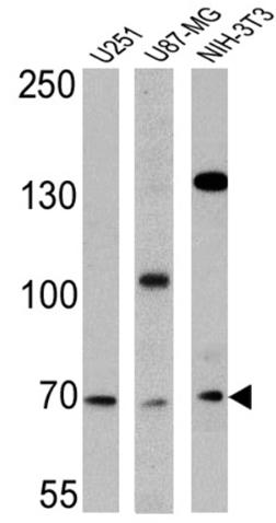All lanes : Anti-BMAL1 antibody - ChIP Grade (ab3350) at 1/500 dilutionLane 1 : U251 cell lysateLane 2 : U87-MG cell lysateLane 3 : NIH-3T3 cell lysateLysates/proteins at 25 µg per lane.