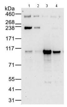 All lanes : Anti-BRD2 antibody [12C2E4] (ab169822) at 0.04 µg/mlLane 1 : HeLa whole cell lysate at 50 µgLane 2 : HeLa whole cell lysate at 15 µgLane 3 : 293T whole cell lysate at 50 µgLane 4 : Jurkat whole cell lysate at 50 µgdeveloped using the ECL technique
