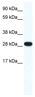Anti-butyrate response factor 1 antibody (ab42473) at 0.125 µg/ml (5% skimmed milk / PBS) + 10µg Human placenta whole cell lysateSecondaryHRP conjugated anti-rabbit at 1/50000 dilution