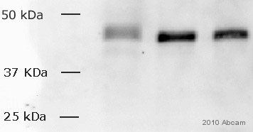 Anti-c-Fos antibody (ab429) at 1/500 dilution + Whole cell lysate of chicken embryonic fibroblasts at 20 µgSecondaryGoat Anti-Rabbit IgG H&L (HRP) (ab6721) at 1/1000 dilutiondeveloped using the ECL technique