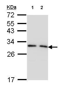 All lanes : Anti-14-3-3 gamma antibody (ab155050) at 1/1000 dilutionLane 1 : 293T whole cell lysateLane 2 : A431 whole cell lysateLysates/proteins at 30 µg per lane.