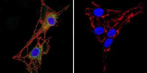 Immunofluorescent analysis of Acetylcholinesterase using Acetylcholinesterase Monoclonal antibody (ZR3) ab2802 shows staining in C6 glioma cells. Acetylcholinesterase staining (green) F-Actin staining with Phalloidin (red) and nuclei with DAPI (blue) is shown. Cells were grown on chamber slides and fixed with formaldehyde prior to staining. Cells were probed without (control) or with or an antibody recognizing Acetylcholinesterase ab2802 at a dilution of 1:20 over night at 4 ?C washed with PBS and incubated with a DyLight-488 conjugated secondary antibody. Images were taken at 60X magnification.