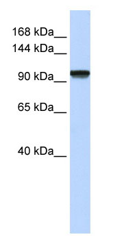 Anti- C21orf66 antibody (ab82669) at 1 µg/ml (5% skim milk/ PBS buffer) + fetal muscle cell lysate at 10 µg with gel concentration: 6-18%SecondaryHRP conjugated anti-Rabbit IgG at 1/50000 dilution
