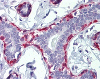 Immunohistochemical analysis of formalin fixed, paraffin embedded Human breast tissue labelled with ab110128 at 3 µg/ml. Followed by biotinylated secondary antibody, alkaline phosphatase-streptavidin and chromogen.