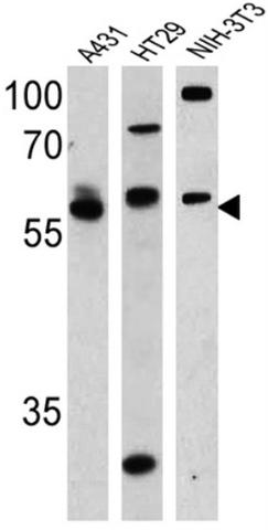 Lane 1 :  Anti-Cannabinoid Receptor I antibody (ab3559) at 1/500 dilutionLanes 2 - 3 :  Anti-Cannabinoid Receptor I antibody (ab3559) at 1/1000 dilutionLane 1 : A431 cell lysateLane 2 : HT-29 cell lysateLane 3 : NIH-3T3 cell lysateLysates/proteins at 25 µg per lane.