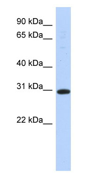 Anti-14-3-3 sigma antibody (ab87209) at 1 µg/ml (in 5% skim milk / PBS buffer) + Transfected 293T cell lysate at 10 µgSecondaryHRP conjugated anti-Rabbit IgG at 1/50000 dilution