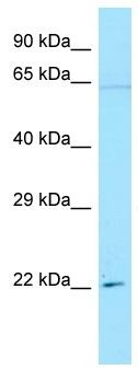Anti- IFI30 antibody (ab133839) at 1 µg/ml + HeLa cell lysate at 10 µg