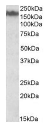 Anti-160 kD Neurofilament Medium antibody (ab195658) at 0.03 µg/ml + mouse brain lysate in RIPA buffer at 35 µg