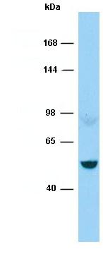 Anti-160 kD Neurofilament Medium antibody - C-terminal (ab136297) at 1 µg/ml + ACHN whole cell lysate at 10 µgSecondaryGoat anti-Rabbit IgG-HRP developed using the ECL technique