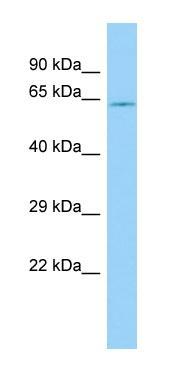 Anti-2 Hydroxy phytanoyl CoA lyase antibody - N-terminal (ab139576) at 1 µg/ml + THP1 whole cell lysate at 10 µg