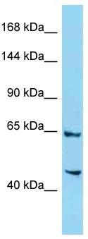 Anti-4732471D19Rik antibody (ab125521) at 1 µg/ml + Mouse liver lysate at 10 µgSecondaryGoat anti-Rabbit IgG-HRP