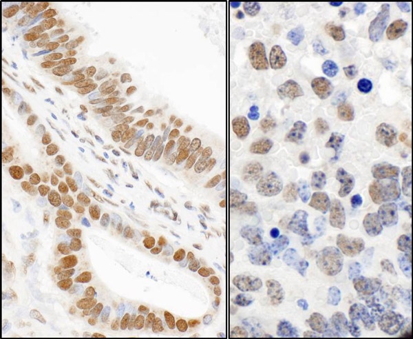 Immunohistochemistry (Formalin/PFA-fixed paraffin-embedded sections) analysis of human stomach carcinoma (left) and mouse teratoma (right) tissues labelling 53BP1 (phospho S24) with ab70323 at 1/1000 (1µg/ml). Detection: DAB.