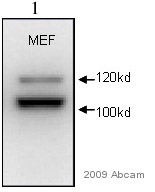 Anti-alpha Actinin 4 antibody (ab59468) at 1/1000 dilution + Whole cell lysates prepared from mouse embryonic fibroblasts at 10 µgSecondaryHRP conjugated goat polyclonal to rabbit IgG at 1/3000 dilutionPerformed under reducing conditions.