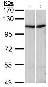 All lanes : Anti-alpha Actinin 4 antibody (ab96686) at 1/1000 dilutionLane 1 : A431 whole cell lysateLane 2 : HepG2 whole cell lysateLysates/proteins at 30 µg per lane.