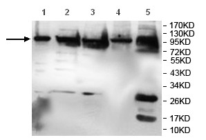 All lanes : Anti-alpha Actinin 4 antibody (ab119945) at 1/1000 dilutionLane 1 : A549 cell lysateLane 2 : HeLa cell lysateLane 3 : MCF7 cell lysateLane 4 : A431 cell lysateLane 5 : Human fetal muscle lysate