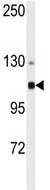 Anti-alpha Actinin 4 antibody (ab76665) at 1/50 dilution + HeLa cell lysate at 35 µg