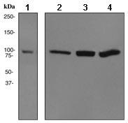 All lanes : Anti-alpha Actinin 4 antibody [EPR2533(2)] (ab108198) at 1/1000 dilutionLane 1 : Fetal skeletal muscle lysateLane 2 : A431 cell lysateLane 3 : MCF-7 cell lysateLane 4 : HeLa cell lysateLysates/proteins at 10 µg per lane.